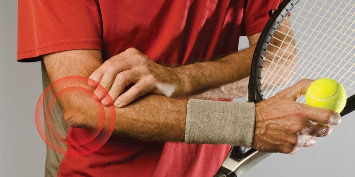 """Osteopatía en """"Codo de Tenista"""" o epicondilitis"""