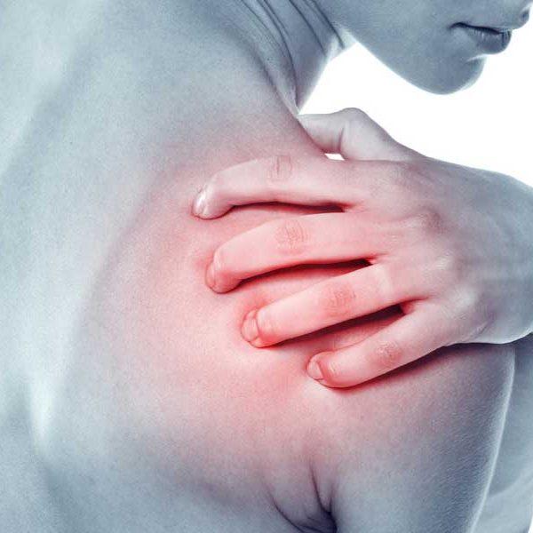tratamiento-osteopatico-del-sindrome-subacromial
