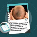 Efectos de la terapia manual sobre la duración del tratamiento y el desarrollo motor en lactantes con plagiocefalia no sinostótica grave