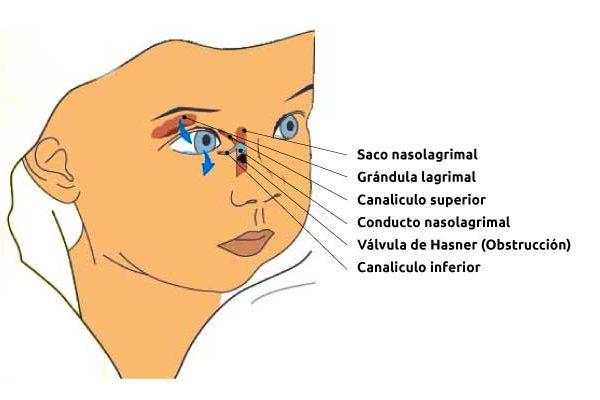 osteopatia-obstruccion-canal-nasolagrimal