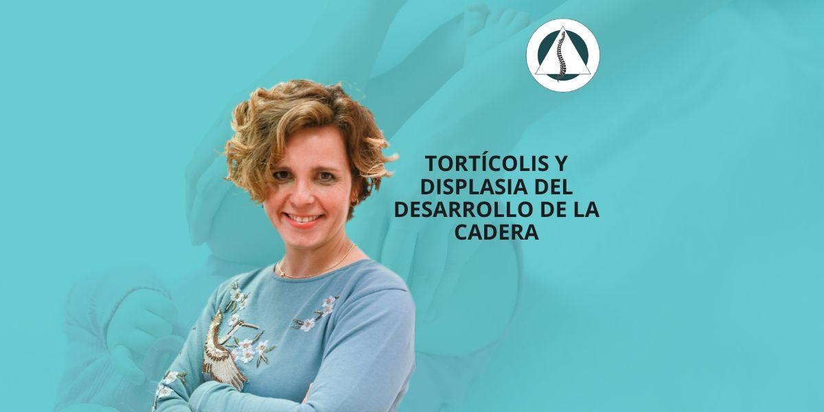 Tortícolis y Displasia del desarrollo de la Cadera